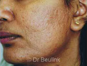laser resurfacing acne scarring after (180)