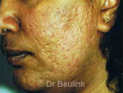 laser resurfacing acne scarring before (180)