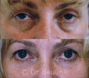 fat injection transfer under eyes,cheek