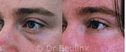 fat injection transfer under eye, cheek