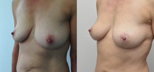 Breast Fat Transfer Augmentation before and after