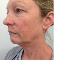 THREAD LIFT:Face,neck lift with suture threads,Auckland,Christchurch,NZ