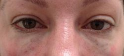 dark under eye circles gtreatment 1 after 250