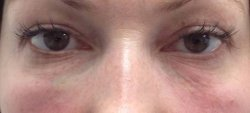 dark under eye circles treatment 2 after 250