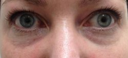 dark under eye circles treatment 3 before 250