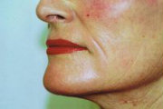 erbium laser resurfacing side view lower face 6 months after (180)