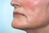 erbium_laser_resurfacing_side_view_lower_face_7_years_after_198.jpg