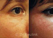 Fat injection transfer under eye,cheeks
