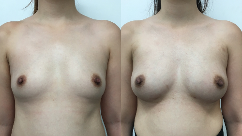 fat transfer breast augmentation before and after photos