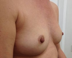 fat transfer breast enlargement after 250