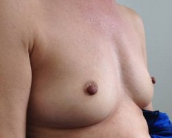 fat transfer breast enlargement before 250