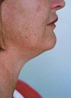 lipodissolve_lipolysis_neck_before_200.jpg