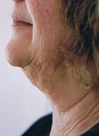 neck_liposuction_thread_lift_side_view_before_200.jpg