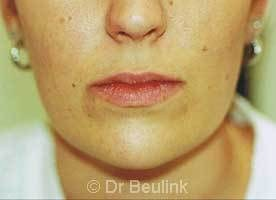 restylane_dermal_filler_lips_1_1.jpg