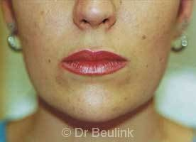restylane_dermal_filler_lips_2_1.jpg