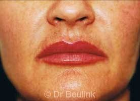 restylane_dermal_filler_lips_4_1.jpg