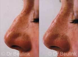 non surgical restylane_nose_job_1_1.jpg