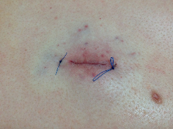 sebaceous cyst removal 6 Auckland Christchurch