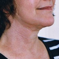 thread face lift neck lift after
